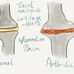 Arthritis Pain Compared to Other Joint Pain