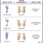 Foot alignment