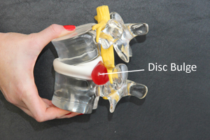 Disc Bulge in forward bending