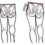 Weak hip abductors, unstable pelvis