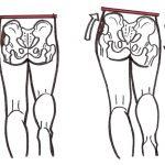 Weak hip abductors, unstable pelvis