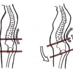 Weak abdominals, tight hip flexors