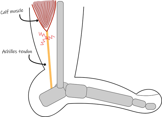 Diagram of Achilles tendinopathy, tendinitis